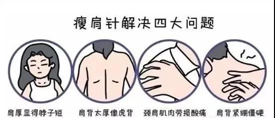 瘦肩针到底是什么?它的作用原理是什么