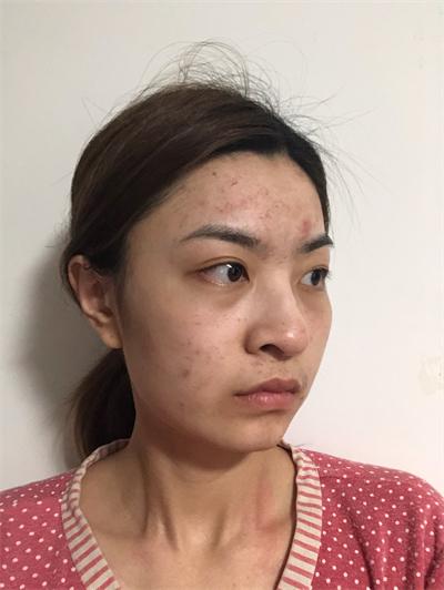 常见的淡颜系美人多也是这样的鼻子