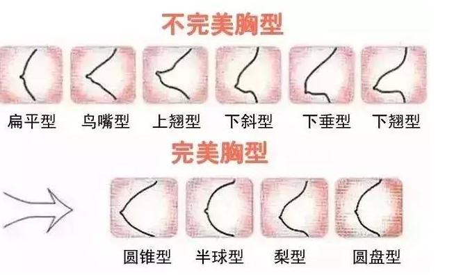 假体丰胸手术多久能变软?假体丰胸手术安全吗?