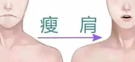 瘦肩针有副作用吗?如何拥有直角肩?