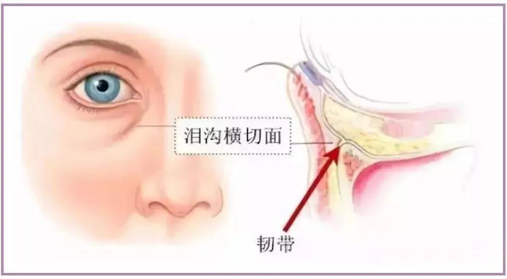 泪沟的位置不用多说,脸上什么位置最为显眼