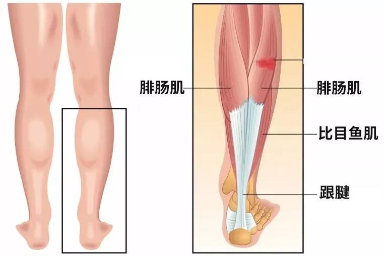 真的能够获得纤细平滑、笔直有型的小腿吗